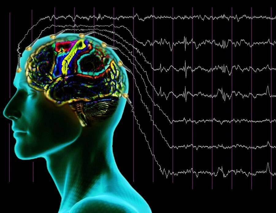 Аппарат, использующийся для этого метода, затрагивает только кору головного мозга